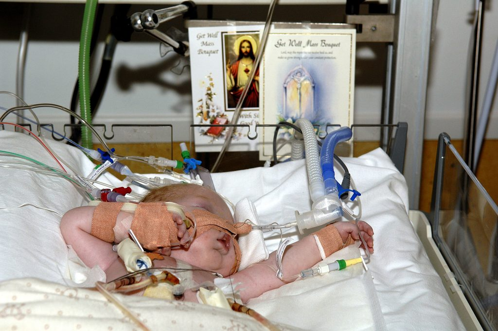 a child hooked up to machines in a hospital bed